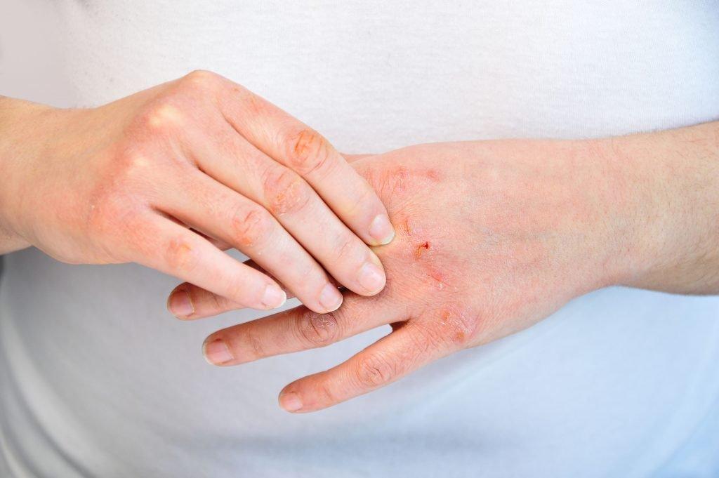 Especialista en dermatitis en Puerto Vallarta